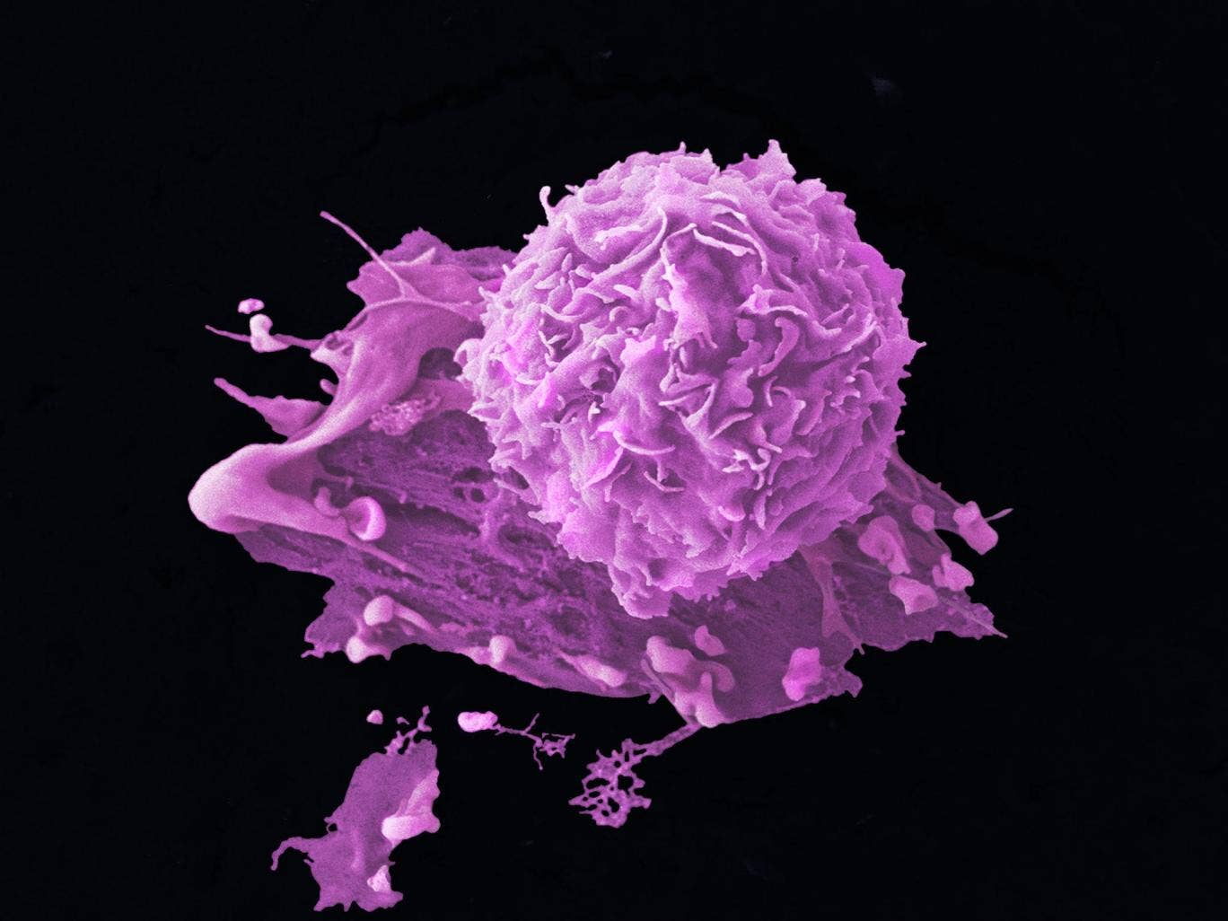 The breast cancer cell - women with breast cancer will have their DNA scanned by scientists in order to better understand the genetic cause of cancer in individuals