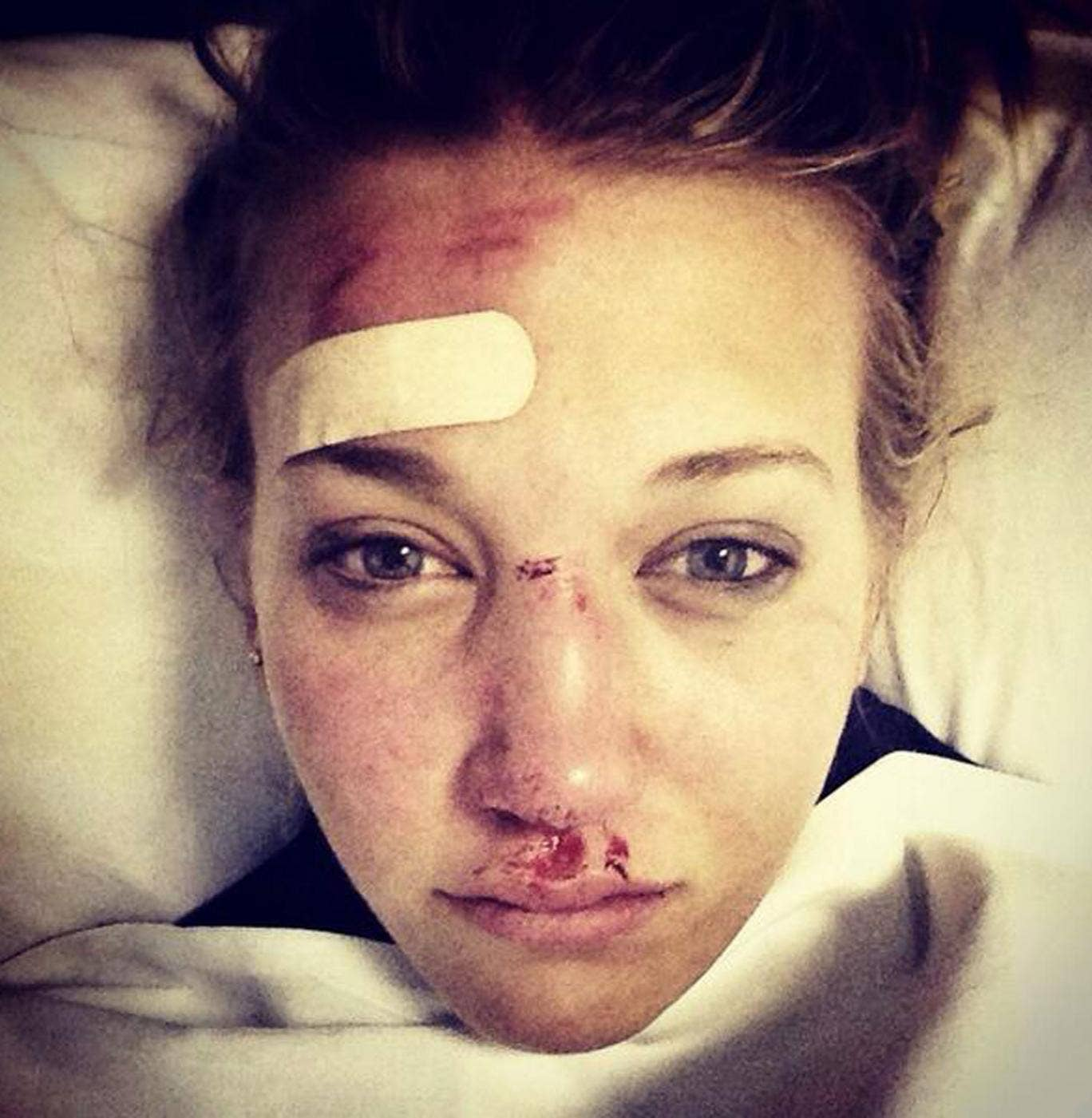Rowan Cheshire posted this picture on Twitter showing the extent of her injuries from a skiing accident