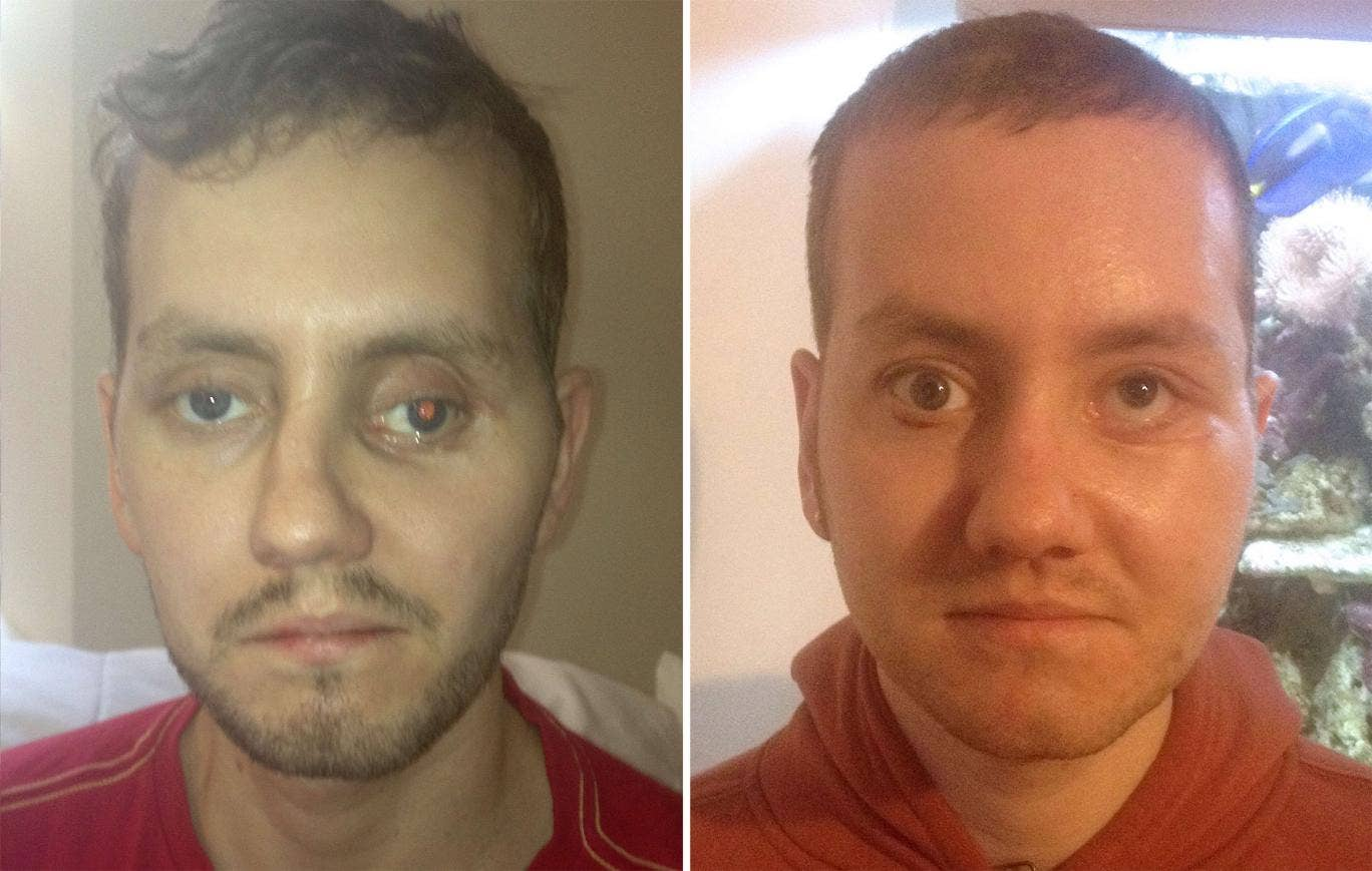 Stephen Power before having facial reconstruction surgery (left) in Wales following a motorcycle accident and after the surgery (right)