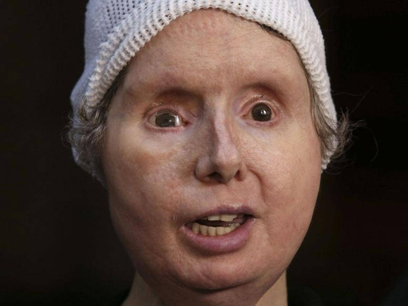 Charla Nash had her face and hands ripped off in the 2009 attack