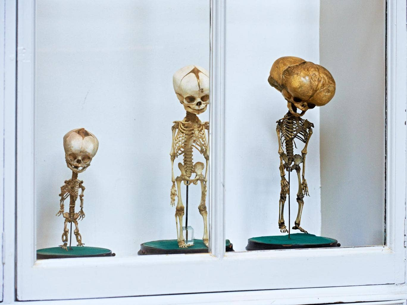 One of the exhibits at 'Death Salon' at Barts Pathology Museum