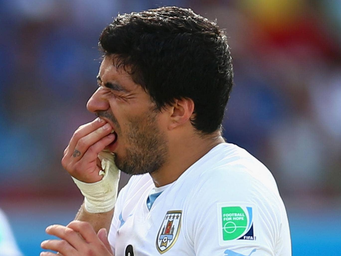 Luis Suarez holds his teeth after colliding with Giorgio Chiellini