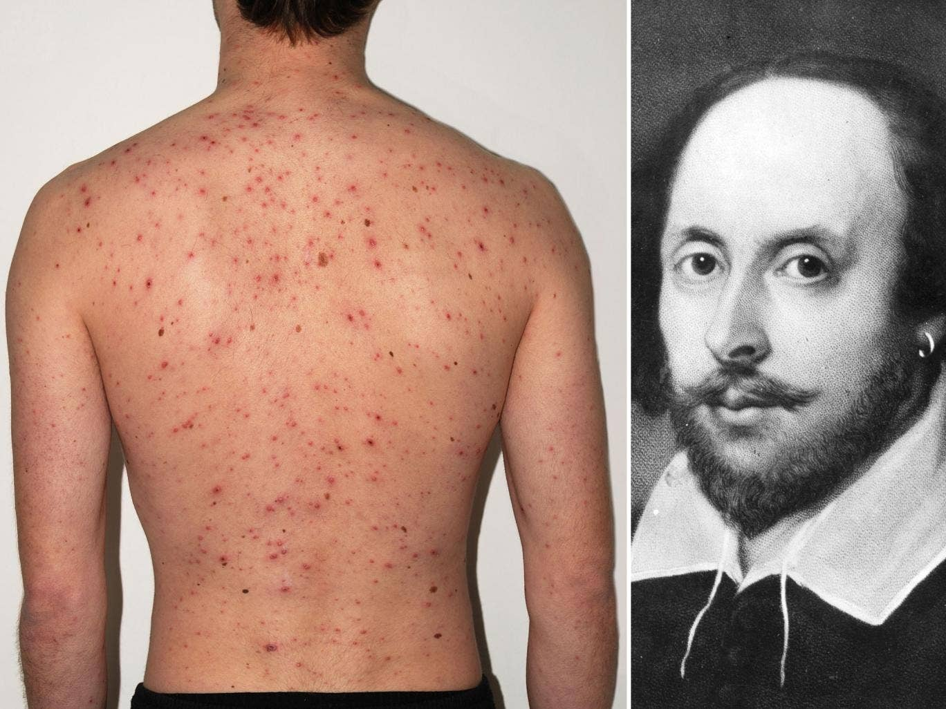 Medical experts are claiming that Shakespeare's success has resulted in a painful legacy for people will skin disease