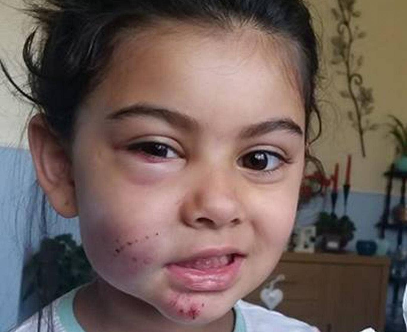 Aaliyah Raj, 4, was run over by cyclists on Eastbourne promenade