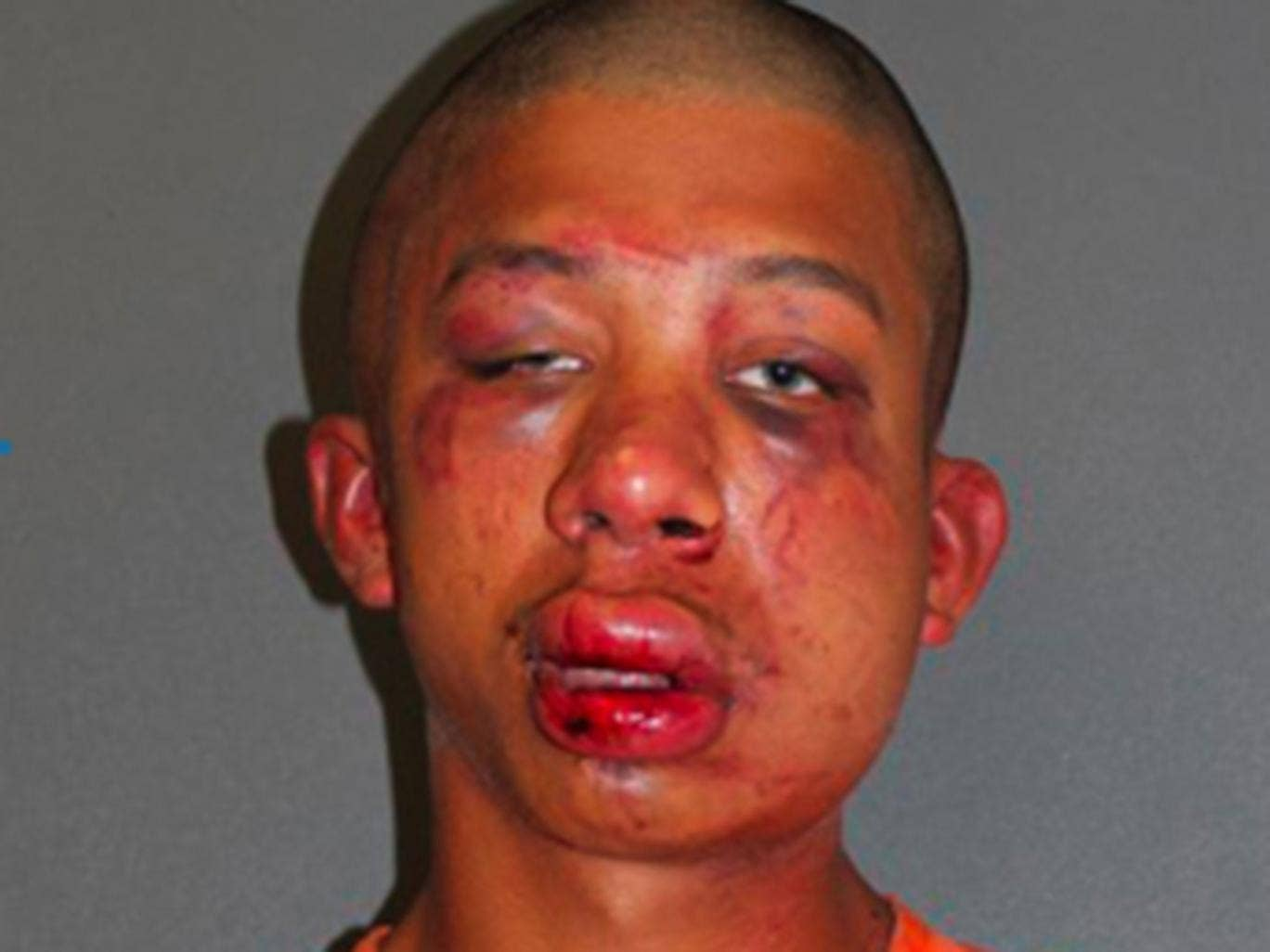 Raymond Frolander, 18, was beaten up when he was caught carrying out a sexual assault on an 11-year-old