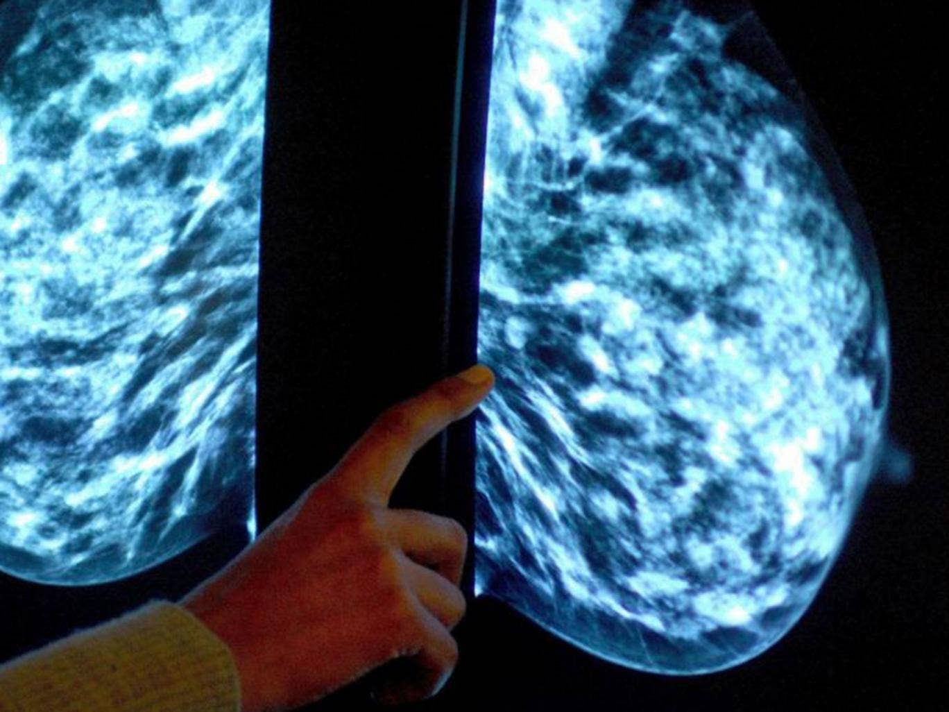 """File photo of a mammogram. Tens of thousands of people diagnosed with breast cancer could benefit from an """"innovative"""" new type of radiotherapy delivered during surgery instead of through a traditional course of treatment."""