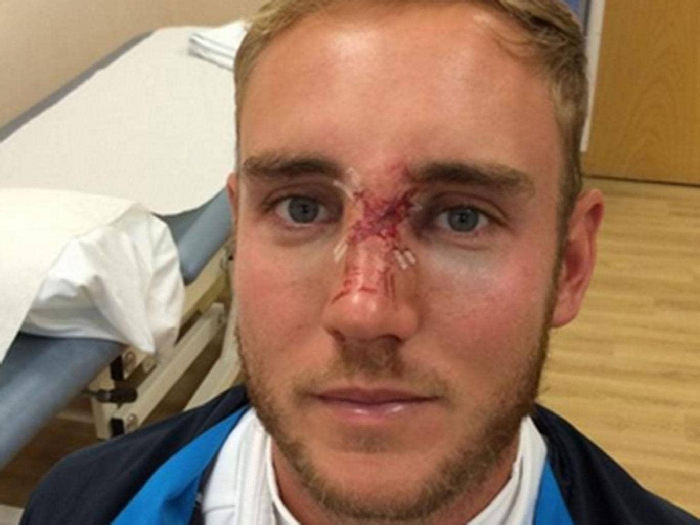 Stuart Broad shows his fractured nose