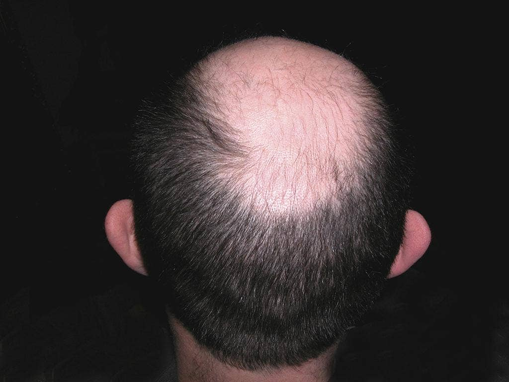 Bald patches on hairline fractures