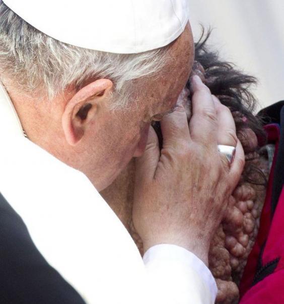 AN31491615epa03937969-Pope-.jpg