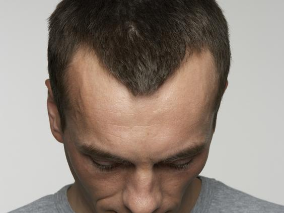 Hair loss explained: How and why men go bald | The Independent