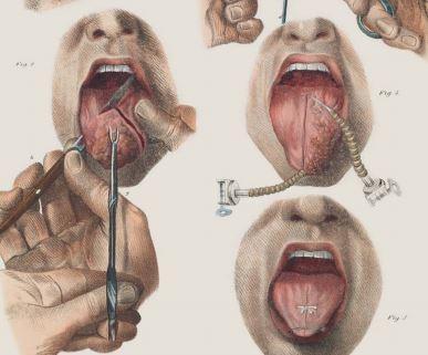 surgery-tongue.jpeg