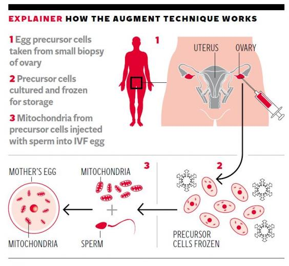 IVF-procedure.jpg