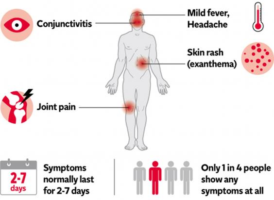 What are the symptoms of Zika infected person?