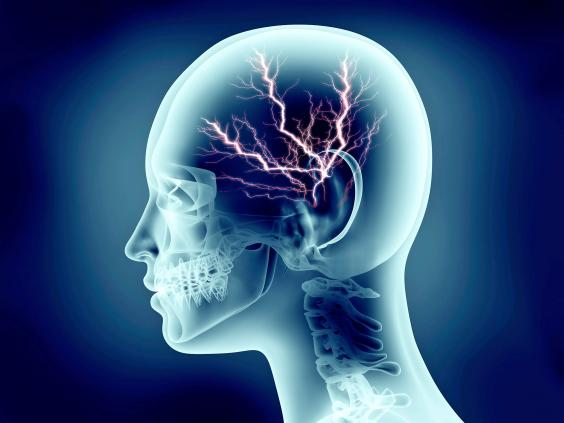 pp-brain-eeg-energy-activity-rf-istock.jpg