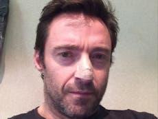 Hugh Jackman undergoes biopsy for cancer scare