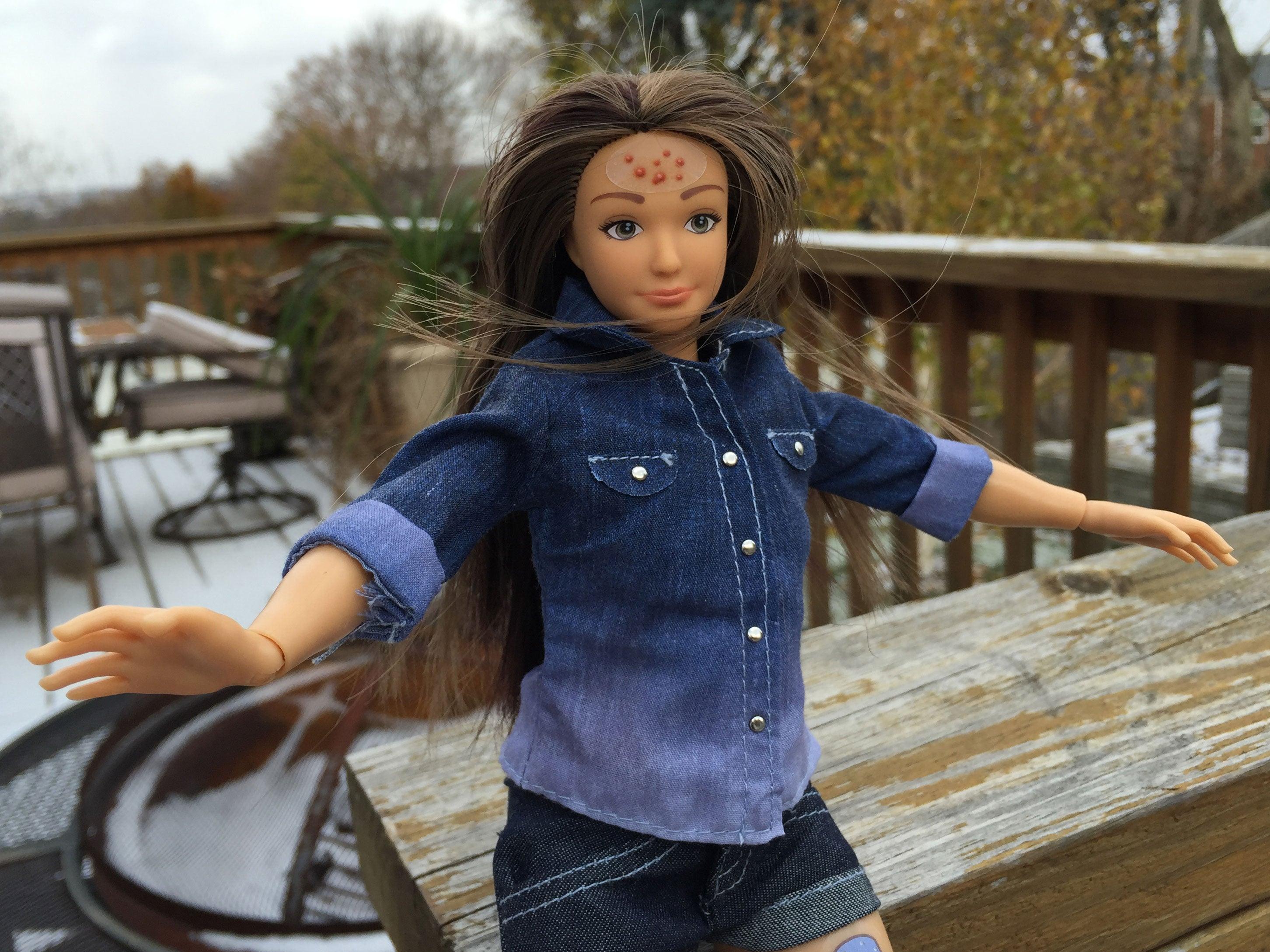 Самая прыщавая девушка 1 фотография