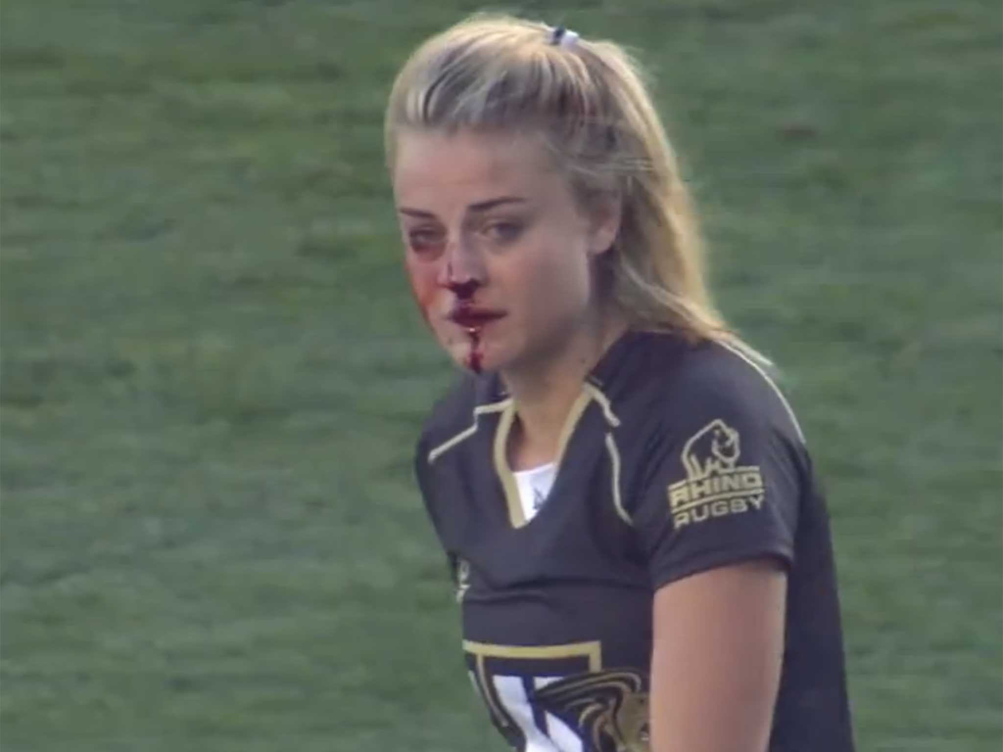 Female Rugby League Page Best
