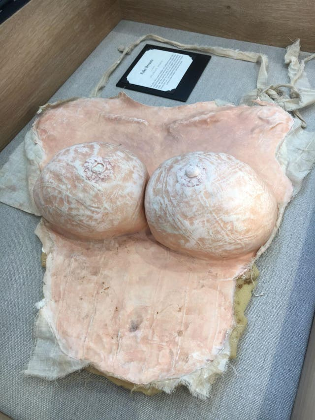 These fake, sculpted breasts were donated by a woman in Belgrade, Serbia, whose husband urged her to wear them during sex. She left him instead.