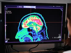 AI finds drug blend that could help children with deadly brain cancer
