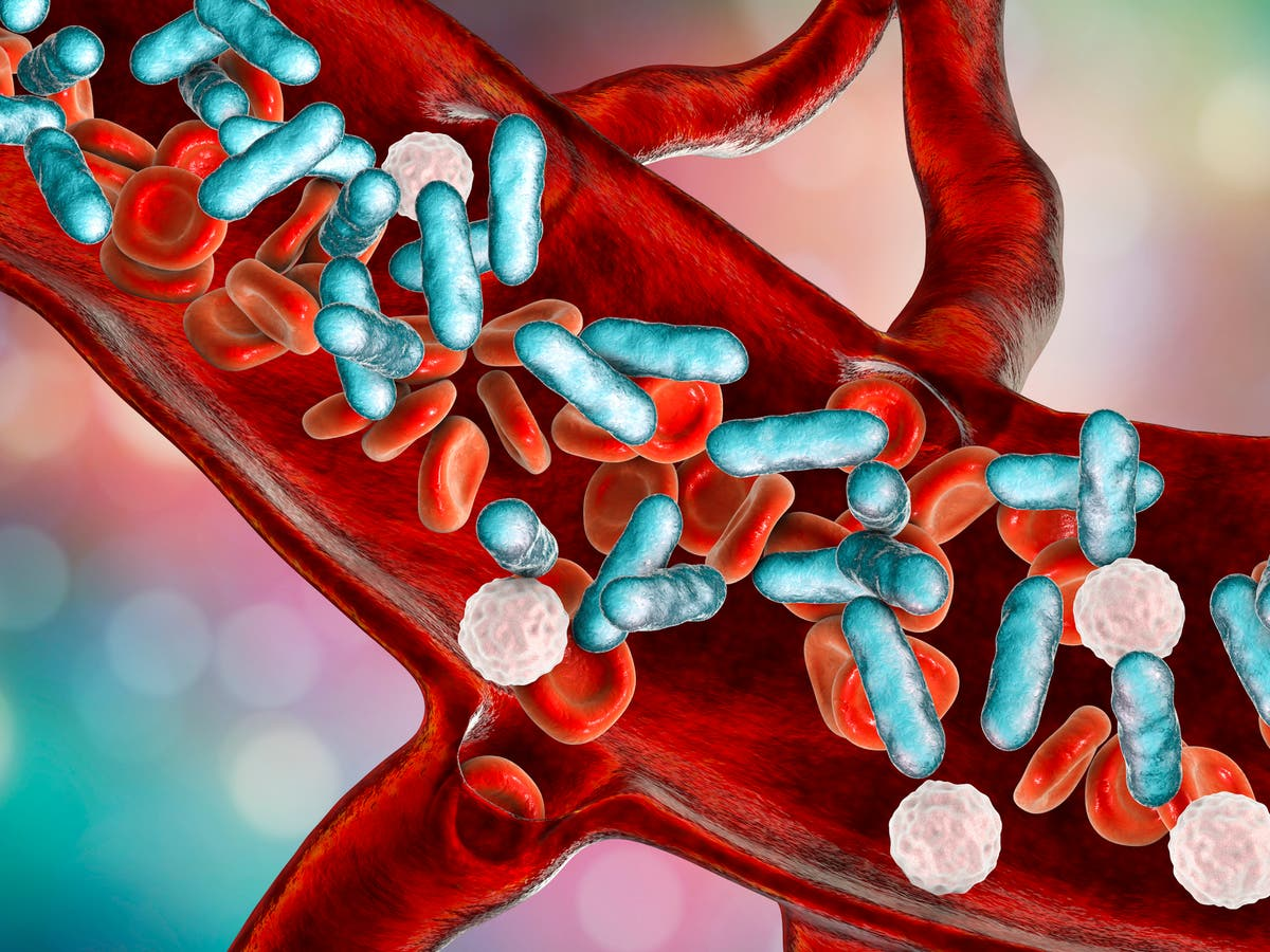 What is sepsis, what are the symptoms and can it be treated?