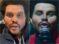 ¿Qué le pasó a The Weeknd en la cara?