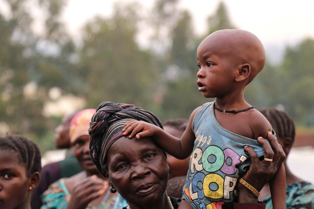 Opinion: Men, women and children are starving in the DRC – it's time to act