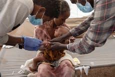 """""""Tenemos que prepararnos para lo peor""""; advierten que miles podrían morir de hambre en Etiopía"""