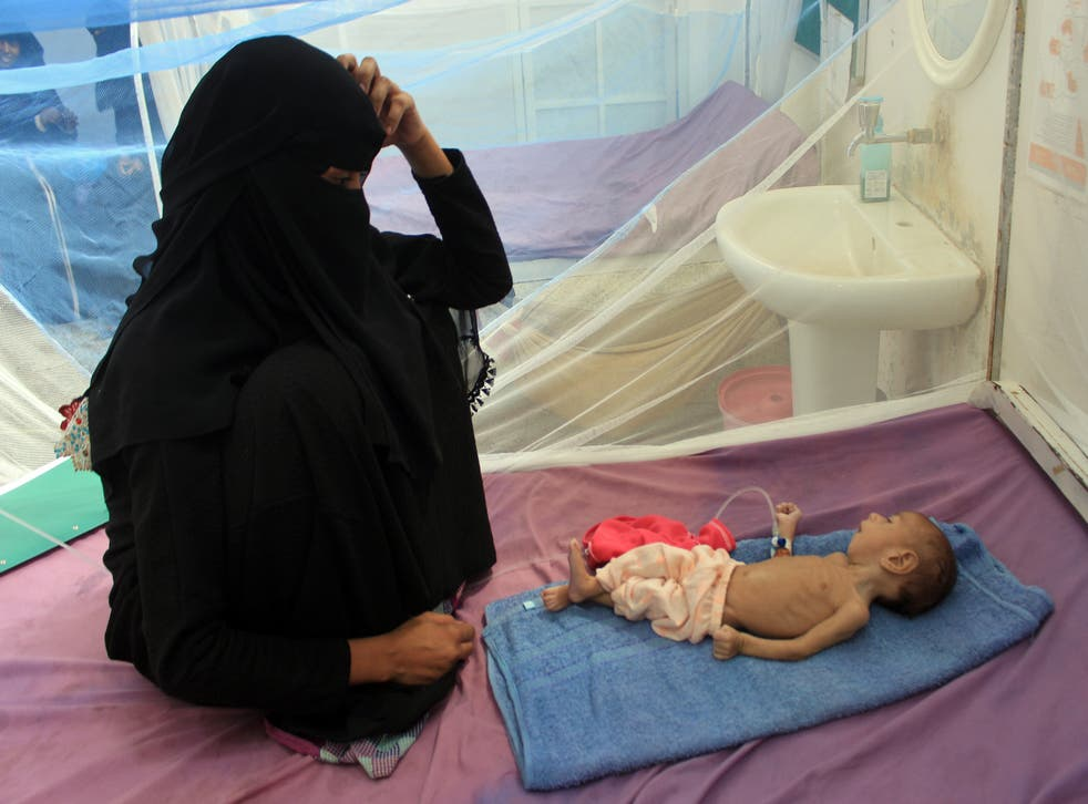 a Yemeni mother sits with her malnourished child during treatment at a medical centre in Yemen's northern Hajjah province