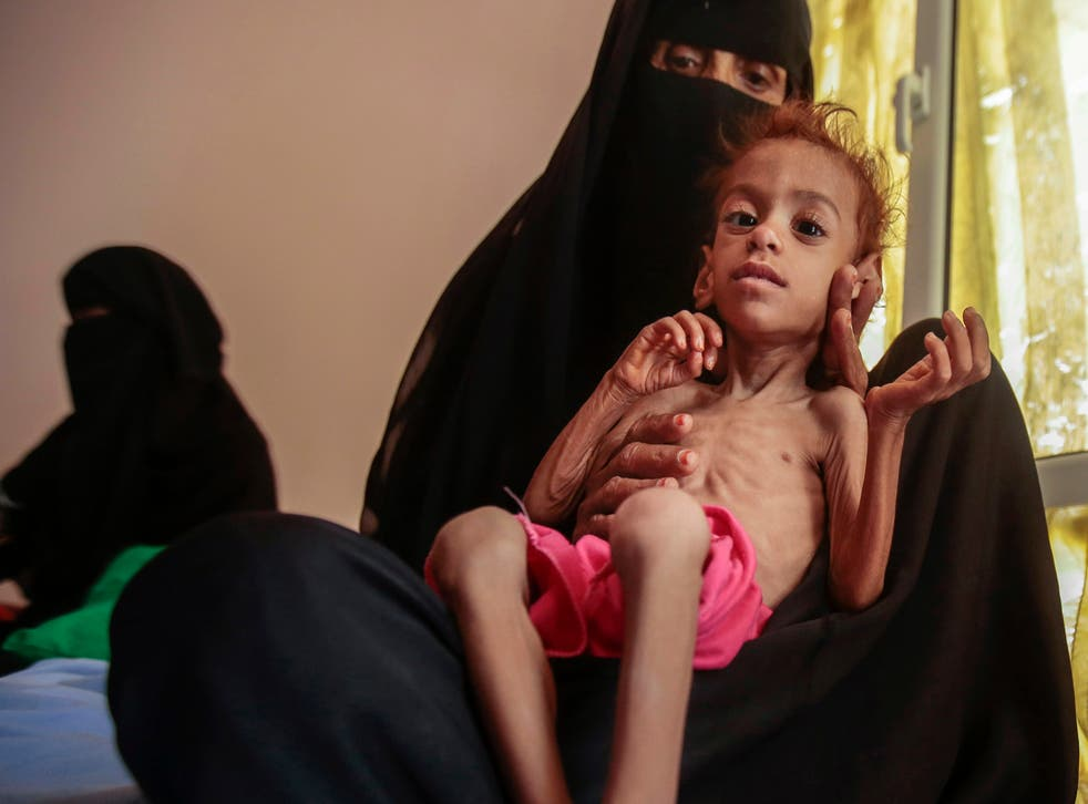 <p>A malnourished child arrives for treatment at the Aslam Health Centre, in Hajjah, Yemen</p>