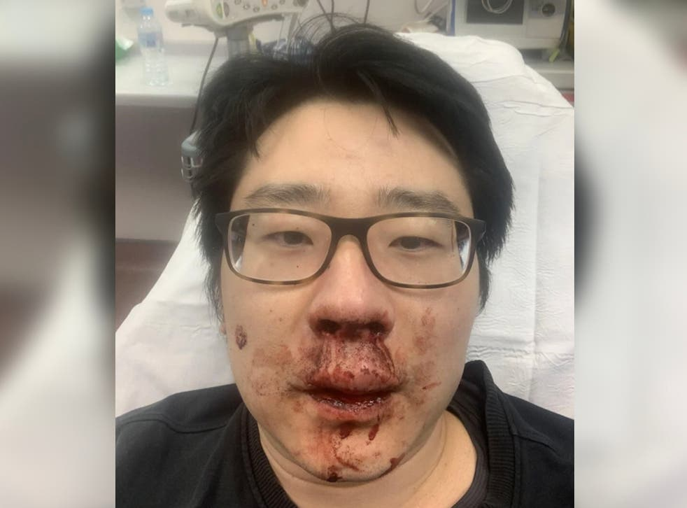 University lecturer Peng Wang, 37, was viciously attacked by four men who shouted racial abuse at him while he was jogging near his home in Southampton