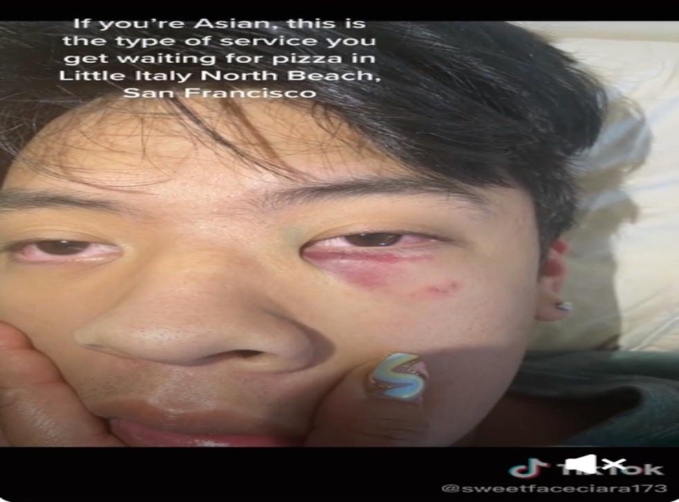 The teen suffered from bruising and swelling as a result of the alleged attack.