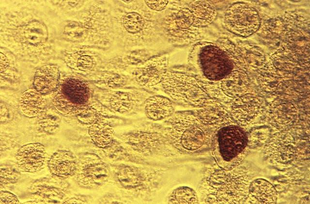 Virus Outbreak STD Testing