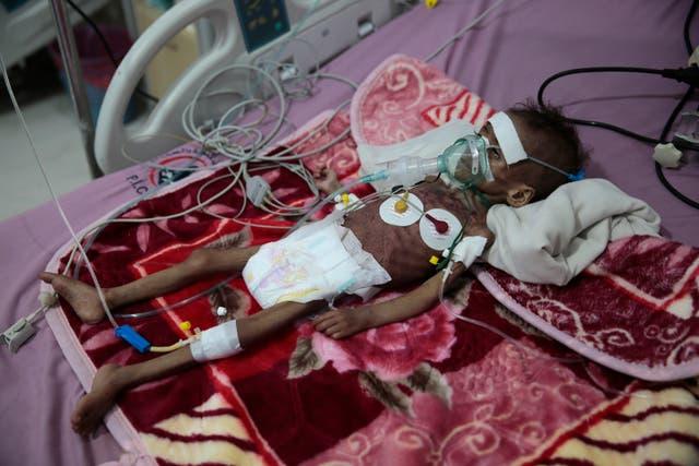 United Nations Yemen