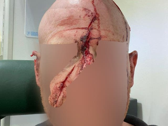 The volunteer's head was streaked with blood. His face was hidden by hunt sabs to protect his identity
