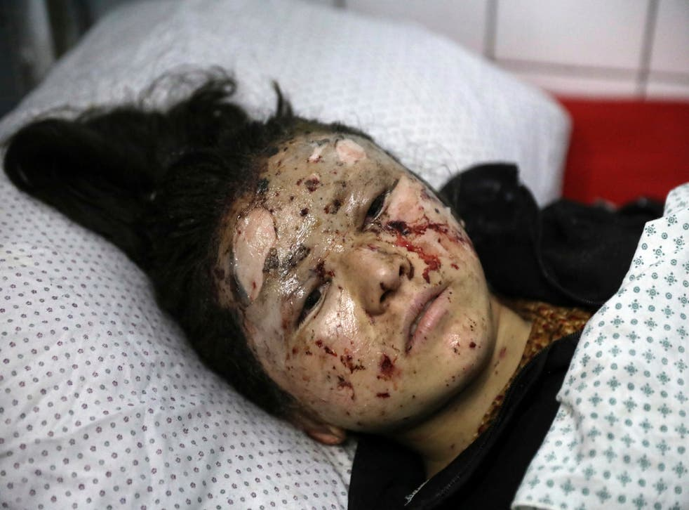 A schoolgirl is treated at a hospital after the bomb near a school in Kabul