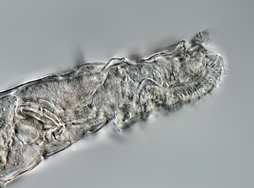 <p>The tiny bdelloid rotifers were found to be more than 20,000 years old</p>