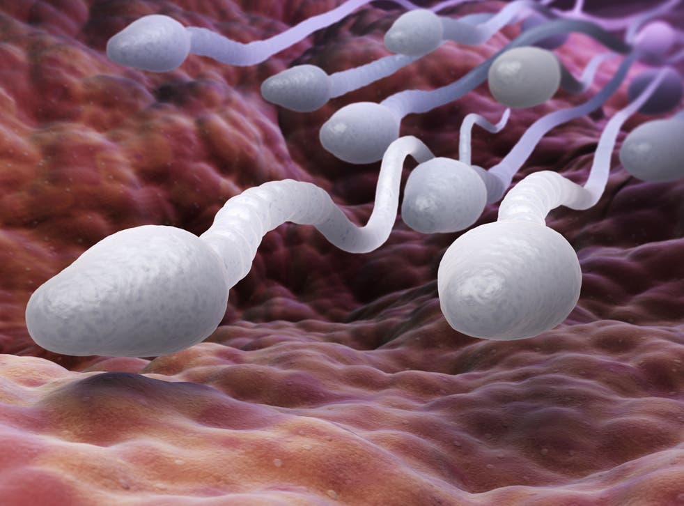 <p>Male sperm cells</p>