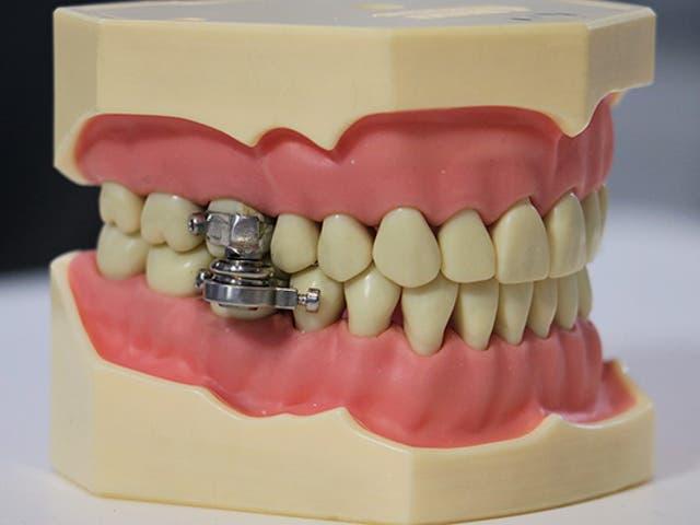 <p>El 'DentalSlim Diet Control' es un dispositivo intraoral desarrollado por investigadores de la Universidad de Otago para 'ayudar a combatir la epidemia mundial de obesidad'</p>