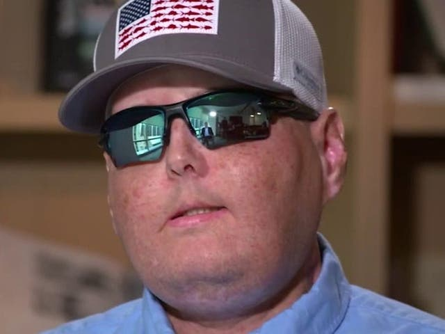 <p>Patrick Hardison, 42, underwent the most extensive face transplant surgery to date in 2016. </p>