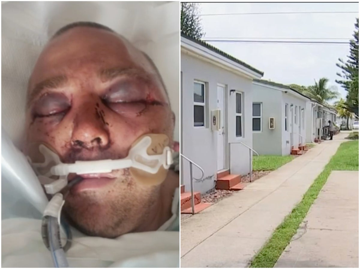 Florida man 'beaten into a coma' after asking neighbors to turn music down  | indy100