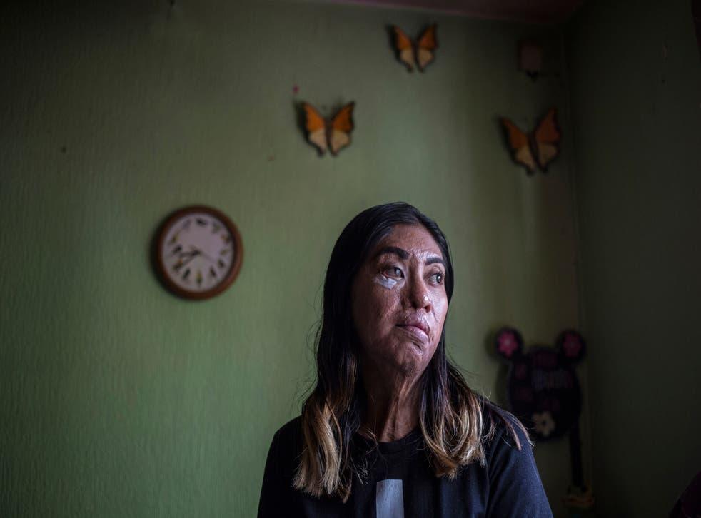 APTOPIX Mexico Acid Attacks