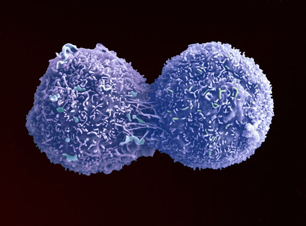<p>A lung cancer cell dividing, captured by the Wellcome Trust </p>