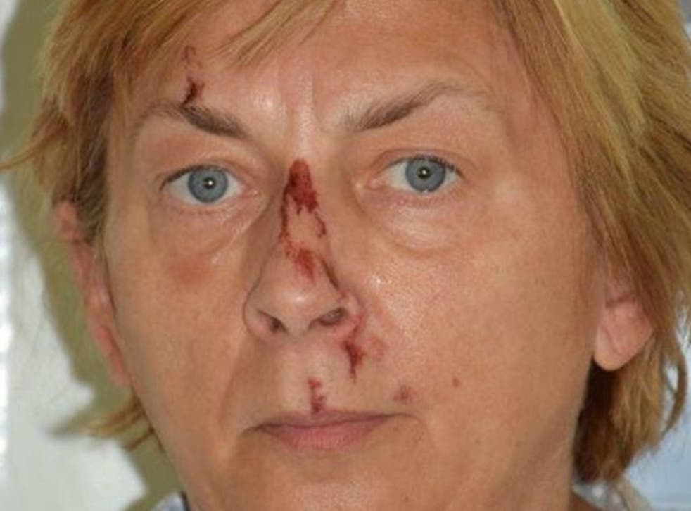 <p>Police appeal for information to establish identity of mystery woman found on Croatian island</p>