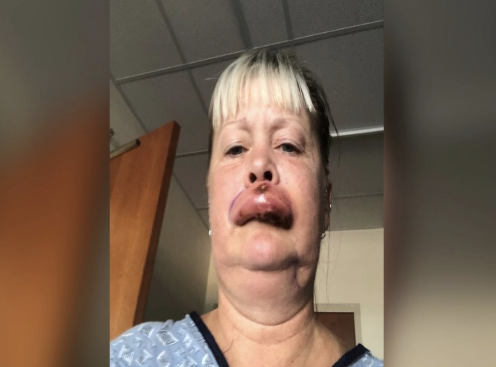 <p>Sherri Maddox was bitten by a brown recluse spider.</p>