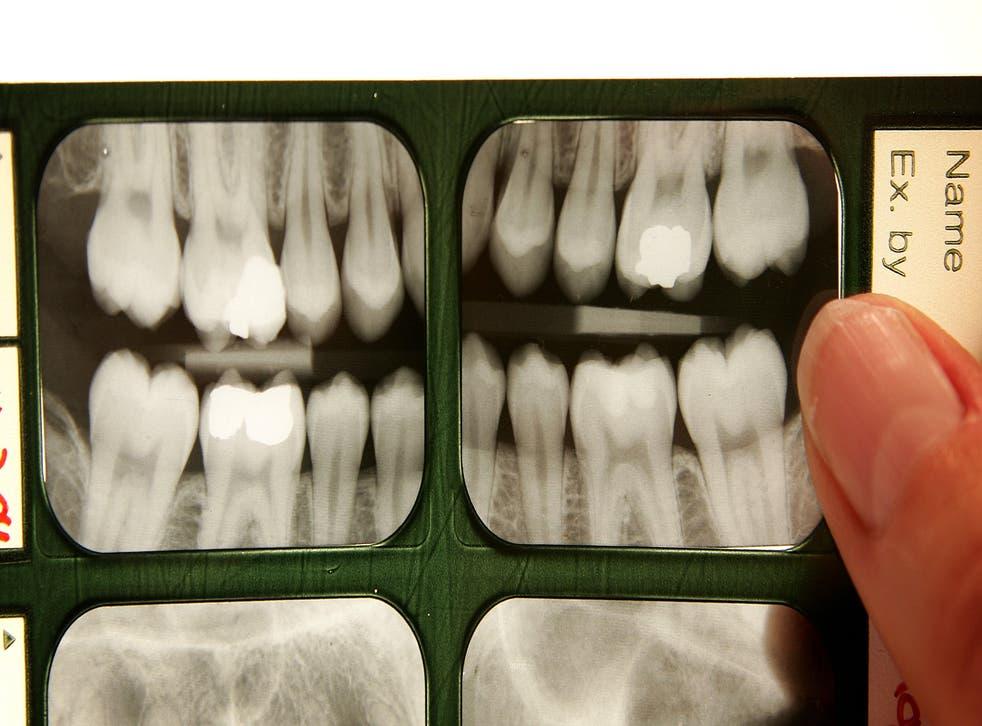 Las radiografías dentales se muestran en una caja de luz