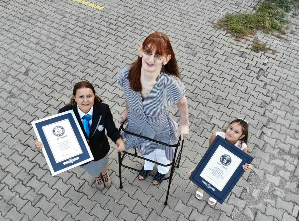 <p>Rumeysa Gelgi's unusual tall stature comes from a rare condition called Weaver syndrome that causes rapid growth </p>