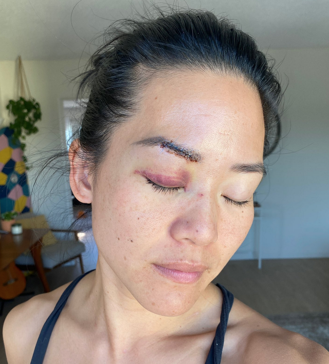 Michelle Yi dice que la golpearon en la cabeza con una barra de metal