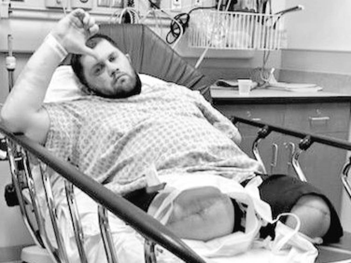 Legendary wrestler has both legs amputated after walking struggle revealed as deadly infection