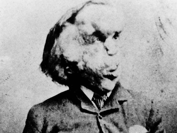 Will DNA unlock the Elephant Man's final secret? | The ...