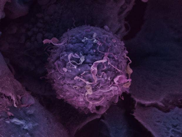 second-breast-cancer-cell-_1.jpg